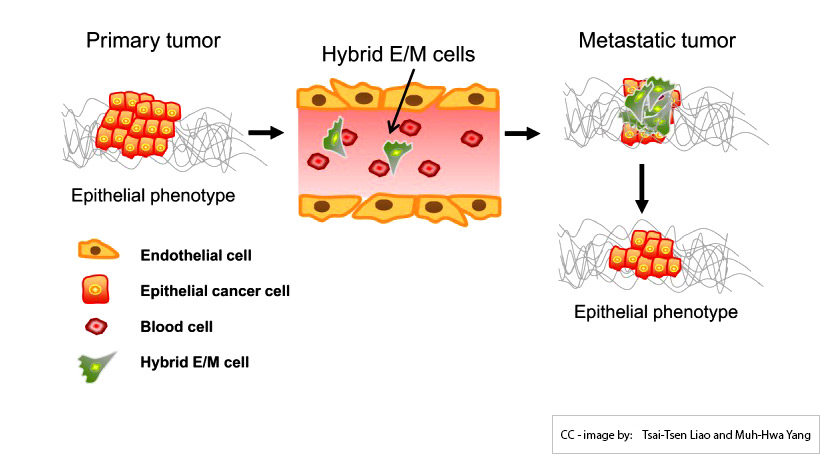 MCBeng EMT and MET while metastasis